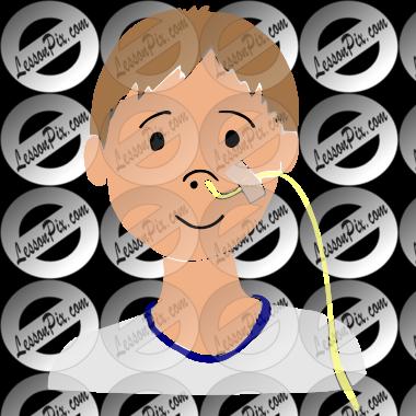 Feeding Tube Placement Clip Art
